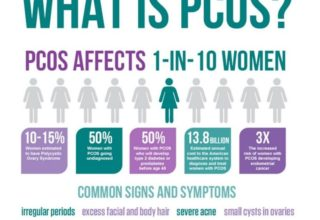 A to Z about Polycystic Ovarian Syndrome (PCOS)