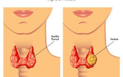 Thyroid Nodules & Thyroid Cancers